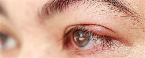 Obat Mata Bintitan Pada Bayi apa penyebab mata bintitan dan bagaimana cara