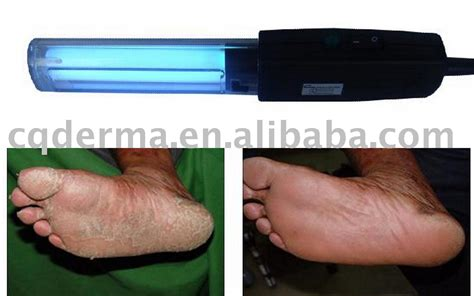 conair light therapy for psoriasis uvb ls psoriasis 187 ls and lighting