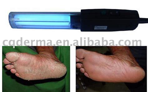 light therapy for psoriasis reviews uv de phototh 233 rapie psoriasis vitiligo ecz 233 ma