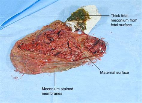 Thick Sticky Stool by Meconium Causes Symptoms Treatment Meconium