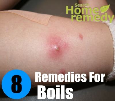 8 excellent home remedies for boils search home remedy