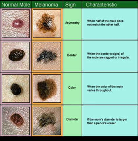 differences between malignant melanoma and a normal mole skin cancer basal cell carcinoma squamous cell carcinoma