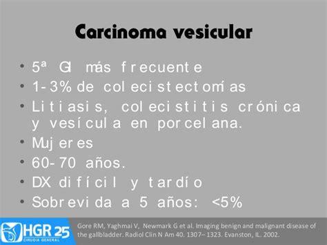 newmark g 60 patolog 237 a benigna y maligna de ves 237 cula y vias biliares