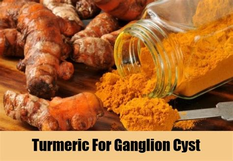 7 treatments for ganglion cyst how to treat
