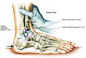 acute ankle sprain conservative or surgical approach