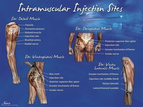 injection volume 3 books 25 best ideas about intramuscular injection on