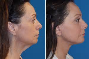 How Much Does A Face And Neck Lift Cost by Kybella Will It Be The Next Big Thing