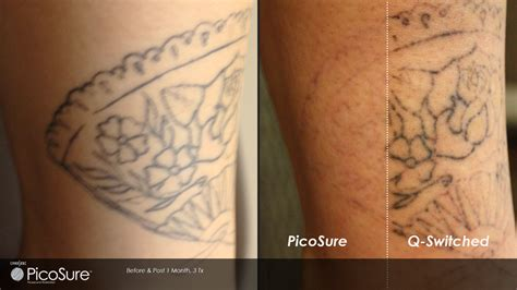 tattoo removal black ink picosure vs black ink regret call carolina laser