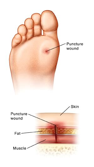 puncture wound puncture wound foot articles mount nittany health system