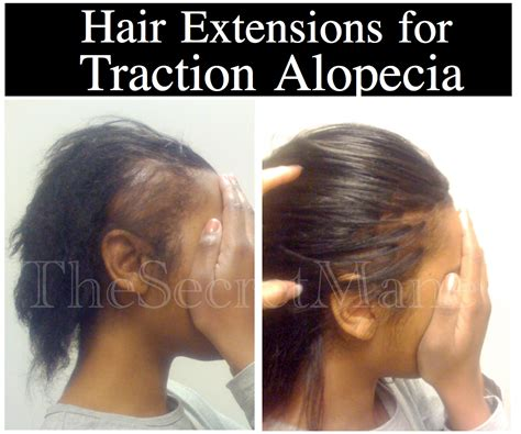 short black hair styles for women with alopecia how long does it take for hair to grow back from traction