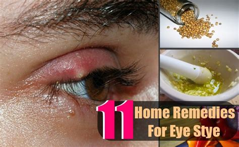 stye eye treatment related keywords
