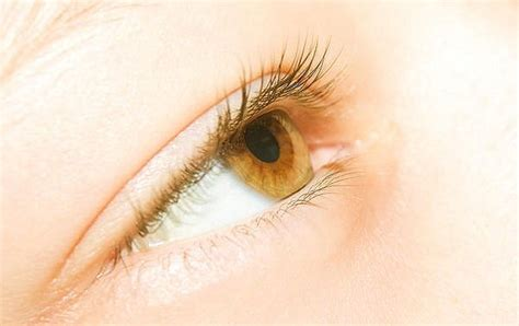 Obat Mata Kuningan hepatitis a penyebab gejala dan pencegahan lengkap