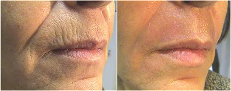 micro needling tattoo removal microneedling with rejuvapen and aq growth factor