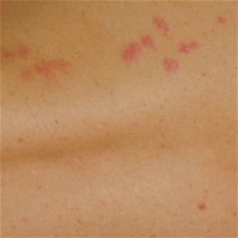 identify bed bug bites what do bed bug bites look like san diego bed bug