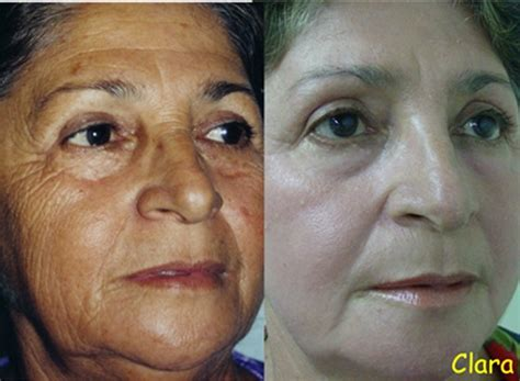 Placenta White Peel Mask could you peeling a layer of skin to look younger