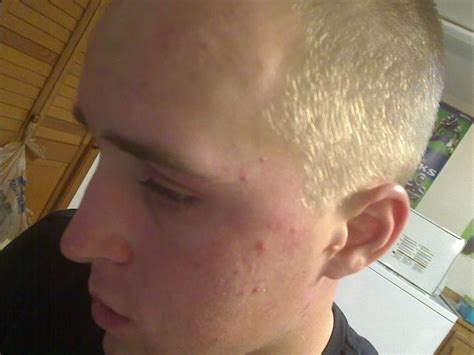does accutane cause mood swings 1st experiance 22yo male accutane isotretinoin logs