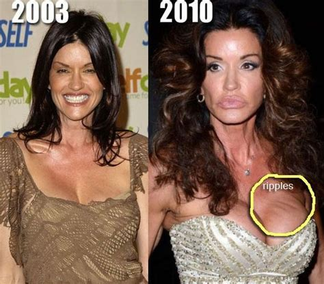 breast implants surgery all about celebrity breast worst celebrity breast implants 10 notoriously bad boob