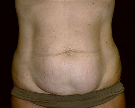 stomach crs after c section tummy tuck abdominoplasty surgery leesburg fairfax