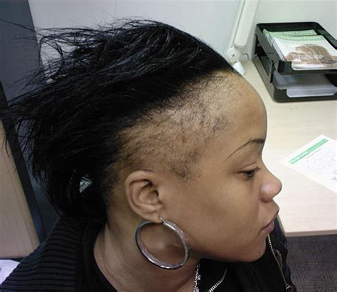Traction Alopecia   all you need to know   HIS Hair Clinic