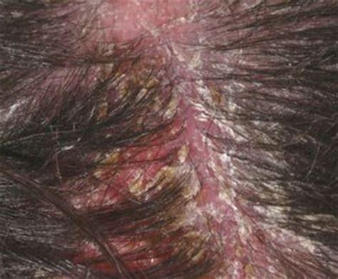 Does Dryer Cause Dandruff severe scalp dandruff www pixshark images