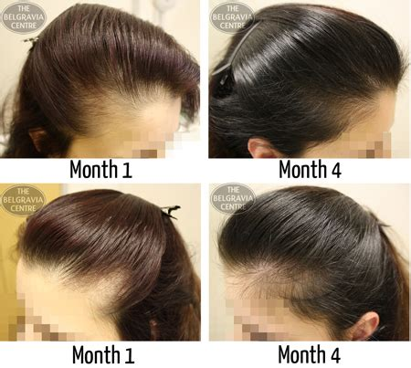 pattern of hair loss in lupus male pattern hair loss comment the belgravia centre male