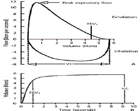Fig 1 Fev 1 Forced Expiratory Volume For The First Second Fvc Vc Forced Vital Capacity Pft Interpretation Template