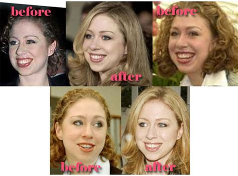 has hillary clinton had cosmetic work done chelsea clinton plastic surgery before and after nose job