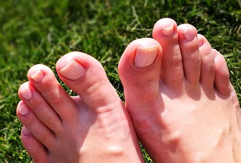 toe nail colors pictures of toenail colors and what they