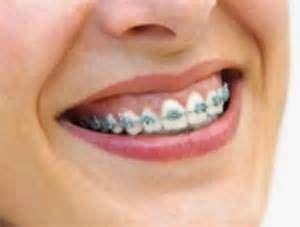 Berapa Kursi Dokter Gigi berapa harga pasang kawat gigi di dokter