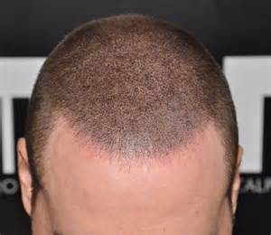 scalp micropigmentation to make hair ticker pictures keeping your hair longer after scalp micropigmentation