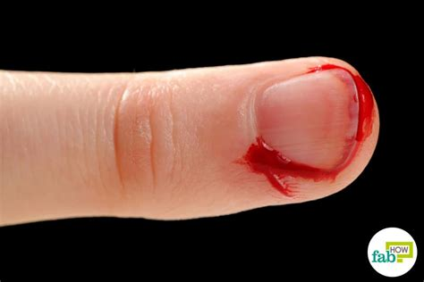 bleeding from how to stop bleeding from cuts and wounds in less than a minute