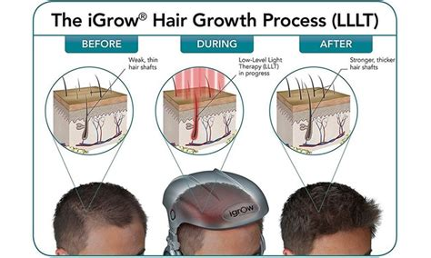 igrow free laser led light therapy hair regrowth system igrow free laser led light therapy hair regrowth
