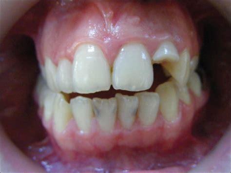 Untuk Pemutih Gigi jenis dan bahan gigi palsu audy dental