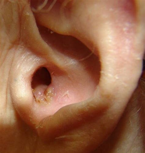 Otitis Externa Home Remedy by What Does Ear Infection Look Like