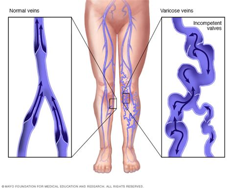 varicose veins treatment symptoms causes pictures varicose veins symptoms and causes mayo clinic
