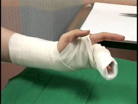 arm gutter splint 반깁스와 통깁스의 차이 네이버 블로그
