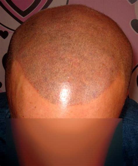 nipple tattoo vitiligo pin by natalia d 233 v 233 nyi on permanent makeup pinterest