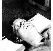 John F Kennedy — Autopsy Photos Expose Cover Up