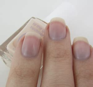 dark nail beds purple nail beds safe symptoms