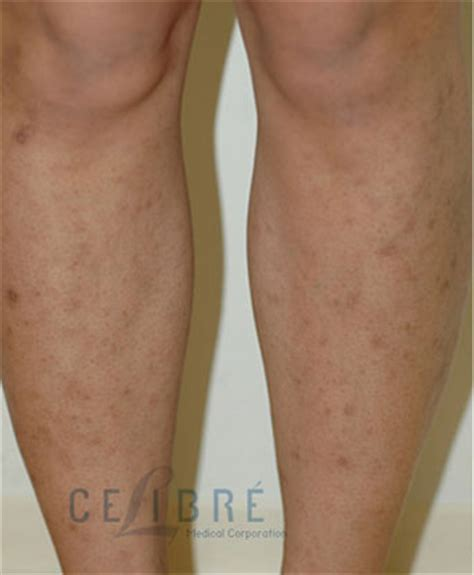 before and after scar removal for bug bites on legs 2
