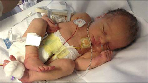 baby born on new year meaning new born baby s leg mercilessly by hospital worker