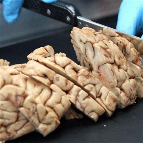 imagenes reales cerebro humano cerebro humano real www pixshark com images galleries