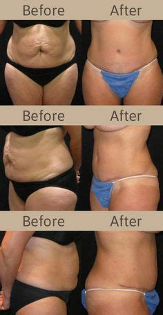 when can you have a tummy tuck after c section diastasis recti on pinterest tummy tucks planks and