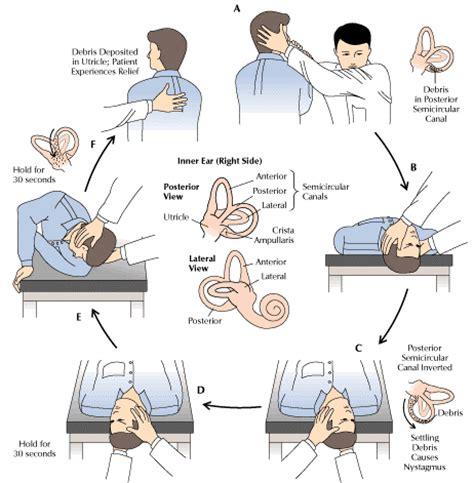dizziness exercises inner ear inner ear crystals epley maneuver positional vertigo