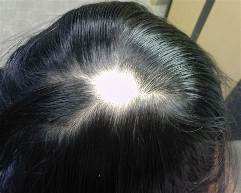alopecia hair loss in women genetic basis of alopecia areata established