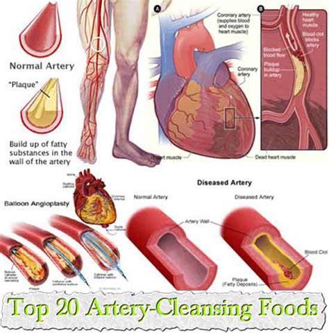 Top 20 Detox Foods by Top 20 Artery Cleansing Foods