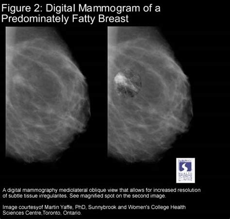 the promise film breast cancer digital mammography the promise of improved breast cancer