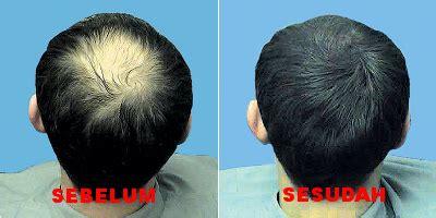 Obat Vitamin Pelurus Rambut obat penumbuh rambut atasi kebotakan jual obat penumbuh