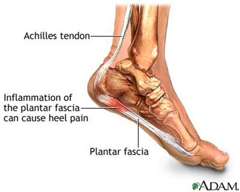 What Is Planter Fascitis by Undefeated Running Superfeet Vs Plantar Fasciitis Vs Evo