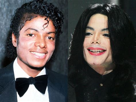 marys extreme makeover face nose and body michael jackson celebrity plastic surgery disasters